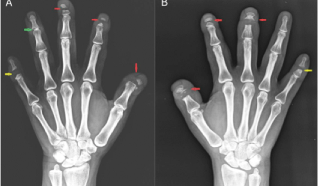 A new way to reverse bone loss: finding normality from abnormality